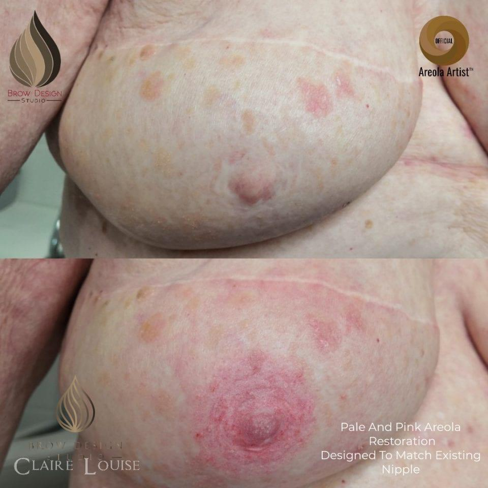 Areola Reconstruction by Claire Louise